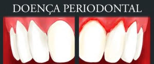 thumb_odo_doenca-periodontal