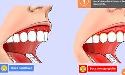 thumb_odo_evolucao-periodontal