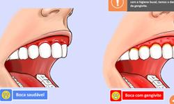 thumb_odo_evolucao-periodontal