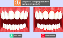 thumb_odo_gengivite